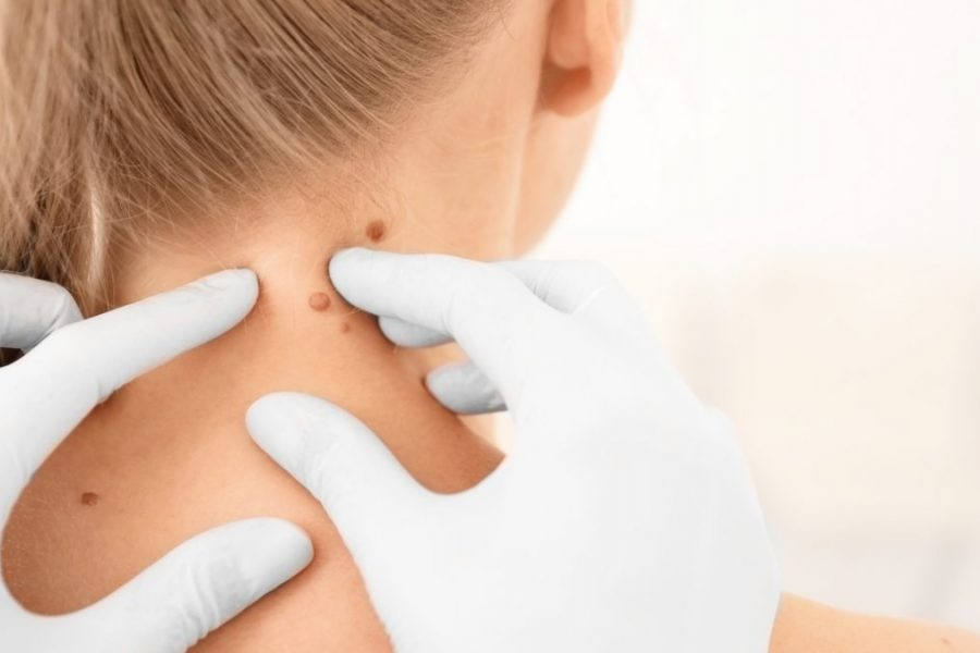 Tratamientos médicos para curar las verrugas en la piel